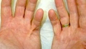 Malattia di Dupuytren (Morbo di Dupuytren)